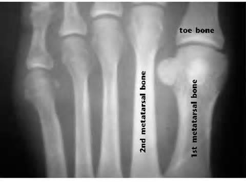 Second Toe Longer Than Big Toe